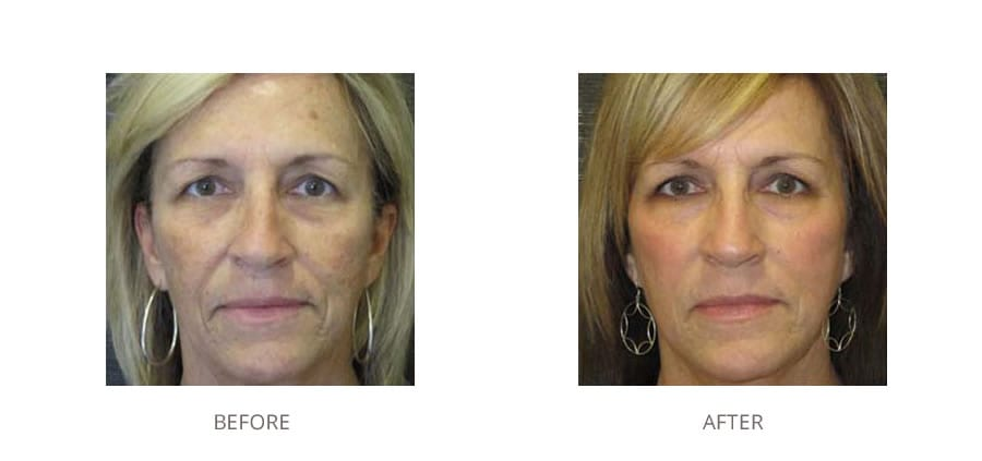 Fractional laser before and after image.