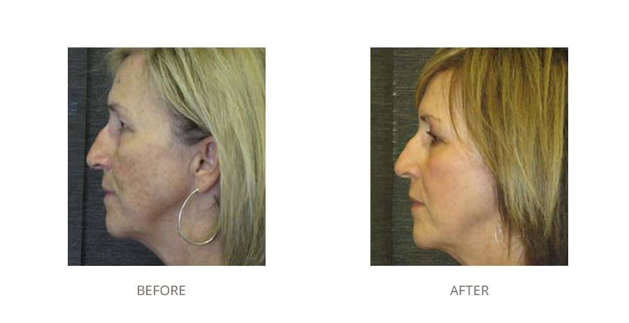 Fractional laser before and after.
