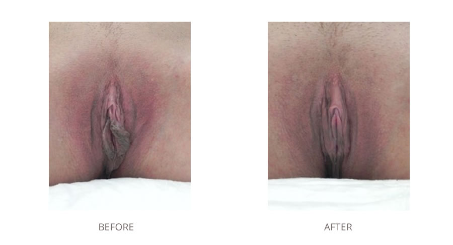 Labiaplasty before and after images.